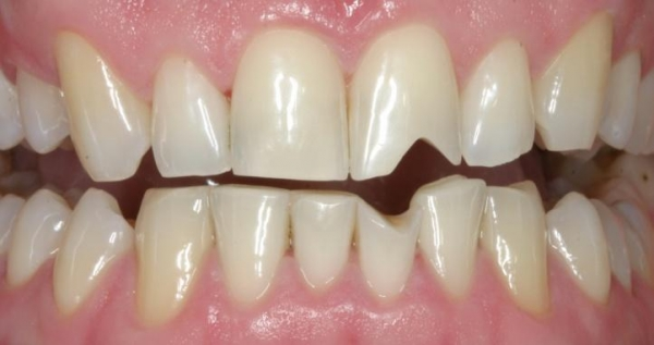 Поврежденный зуб