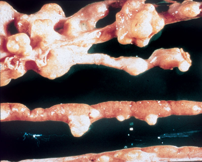 Granulomatous intestinal lesions in a mallard duck caused by Mycobacterium avium intracellulare