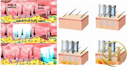 Mô tả chùm tia Laser tác động vào nang lông