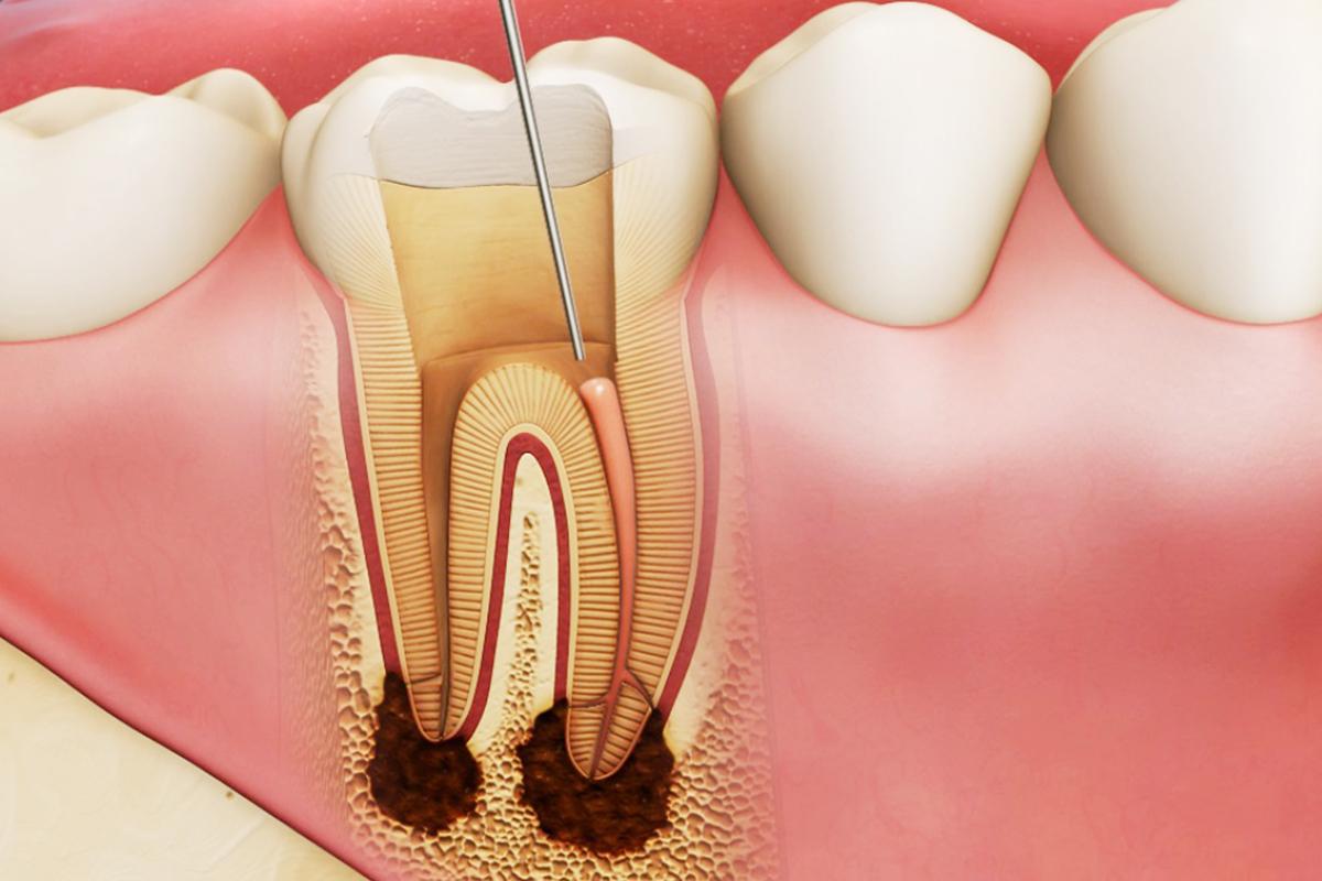Quy trình điều trị nội nha lấy tủy răng tại nha khoa Bally