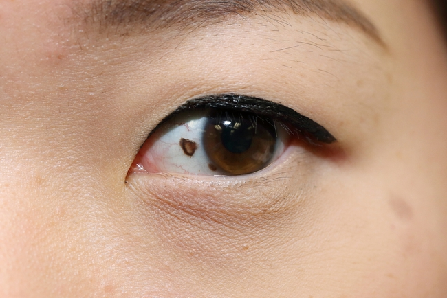 #6) Mole on the Sclera (white part of the eye)
