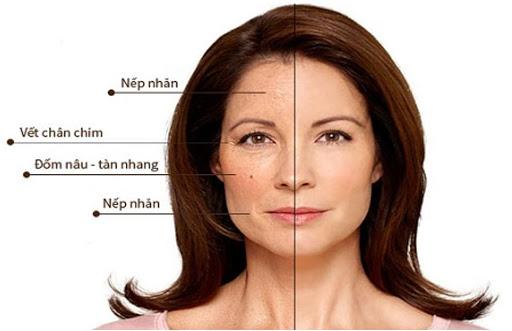 Những dấu hiệu dễ nhận thấy của làn da lão hóa