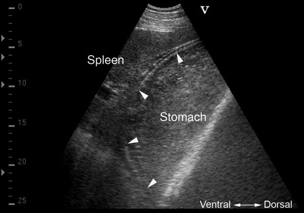 Gastric distention with increased ventral fluid accumulation