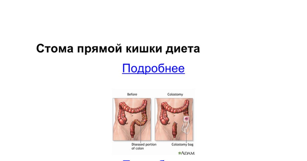 диета после закрытия илеостомы