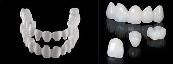 Răng sứ không kim loại giá bao nhiêu ưu đãi nhất hiện nay