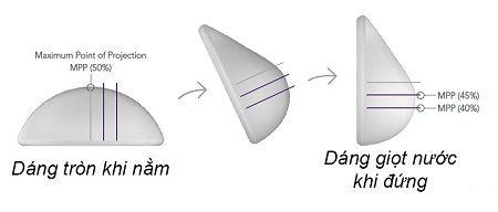Ưu điểm của nâng ngực túi Nano Chip - Ảnh 3
