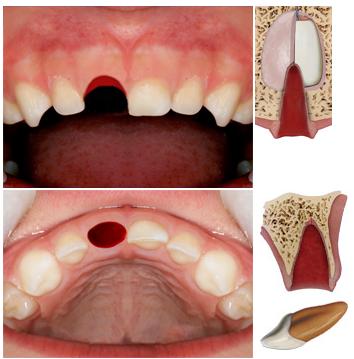 SDB - QUADERNI - Dental Trauma Guide - English Version