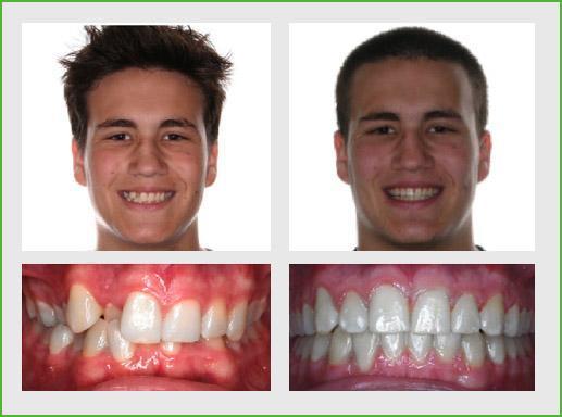 http://www.ortodonziabologna.it/wp-content/uploads/2012/02/Invisalign-Overbite4.jpg