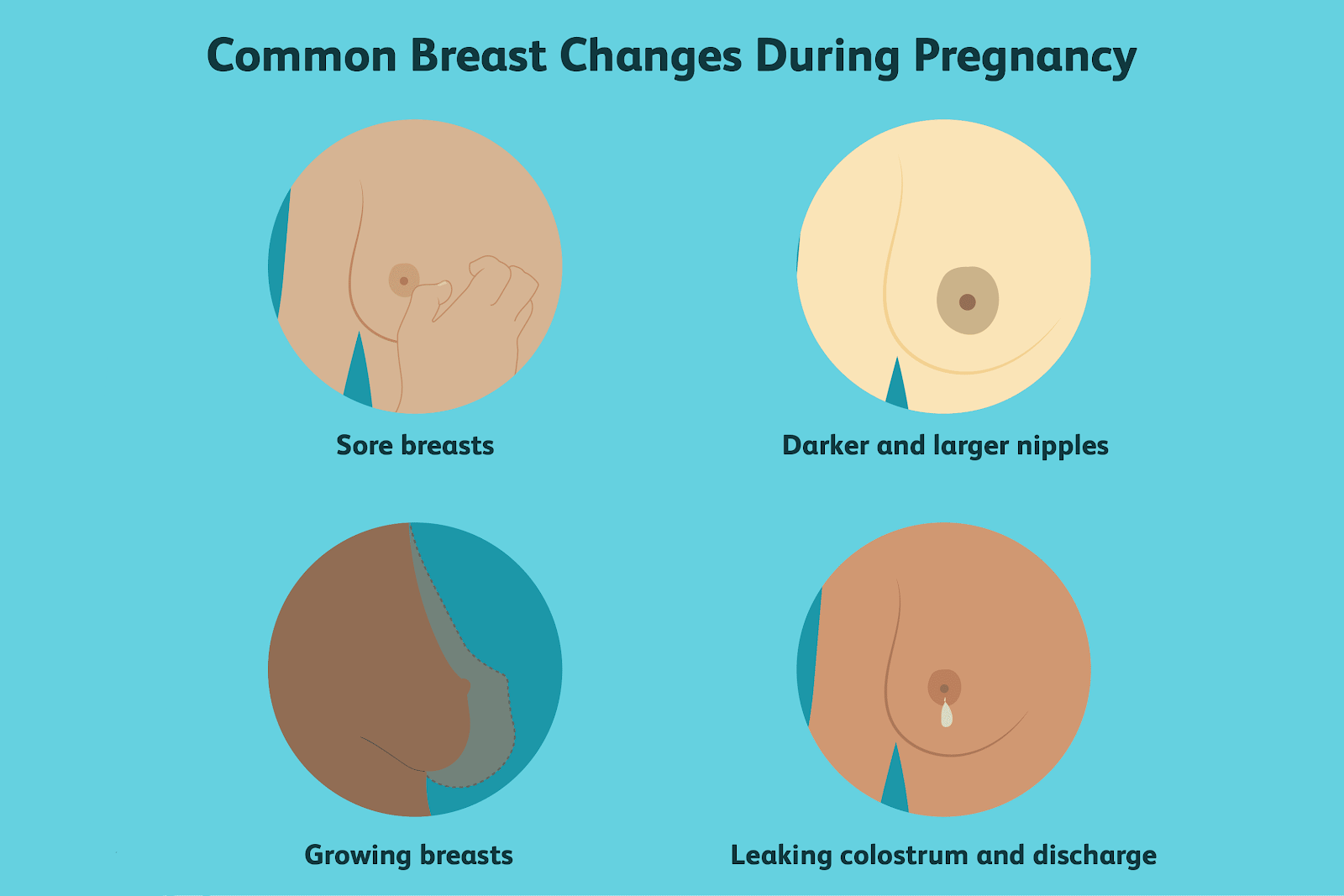 Breast-Change-after-Pregnancy