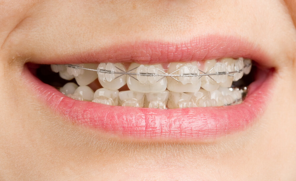 Niềng răng một hàm có được không, hiệu quả đến mức nào? 1