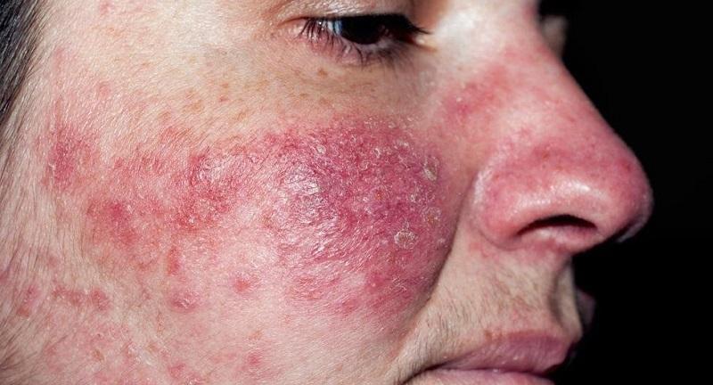Bệnh nhân bị nhiễm ký sinh trùng Demodex