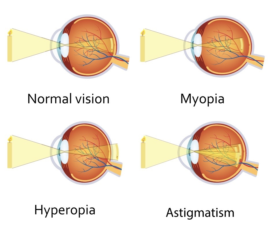 How Can You Reduce Your Myopia ?