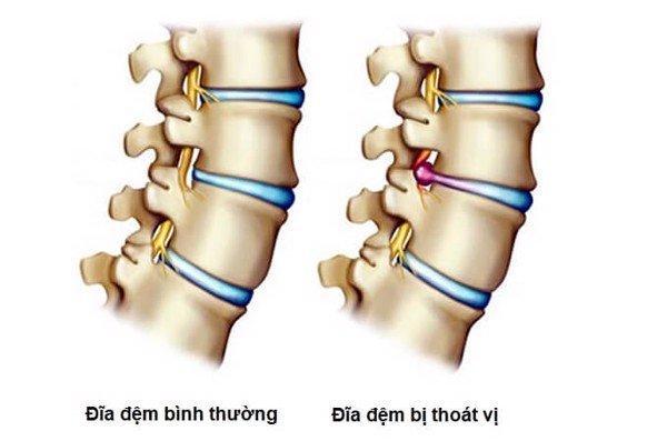 thoat-vi-dia-dem-wellbeing