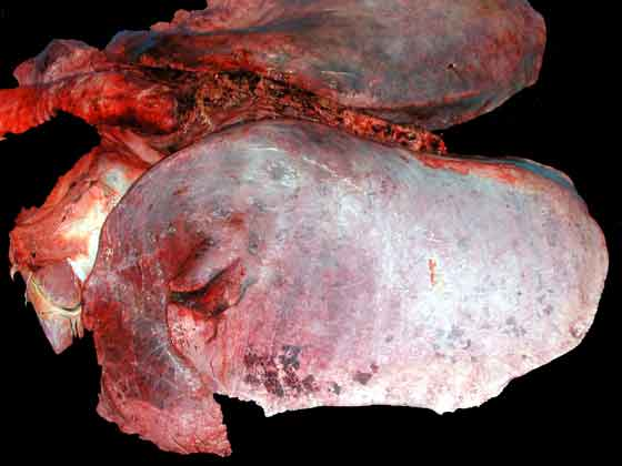 Scattered red to black foci in the anterior lung associated with acute hemorrhage.