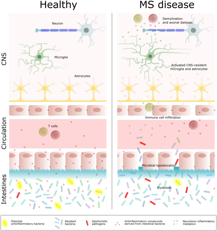 Role of the Microbiome in Bacterial Translocation in Multiple Sclerosis