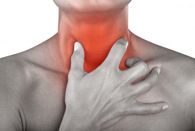 Đau rát họng là triệu chứng của viêm họng hạt cấp