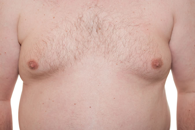 Gynaecomastia - Male Breast Reduction.jpg