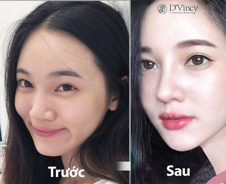 vien-tham-my-Dvincy-5-ly-do-cong-nghe-nang-mui-amis-perfect-softline