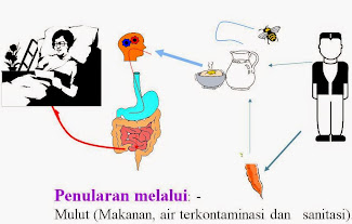 S.LUTENA Untuk Pengobatan Penyakit Tifus
