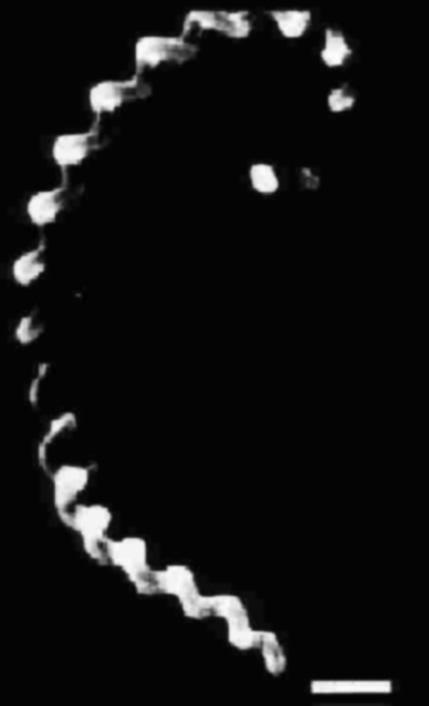 Typical morphology of leptospirae. Electron photomicrograph. L. pomona x20,000.