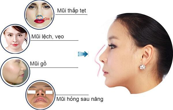 Nâng mũi cấu trúc sụn sườn tự thân là gì? - Ảnh 2
