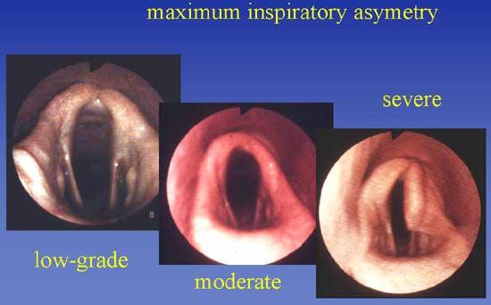 Gradings of idiopathic laryngeal hemiplegia.