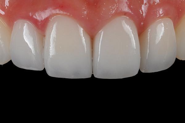 Răng sứ katana có tốt không, độ bền duy trì tối đa bao lâu?