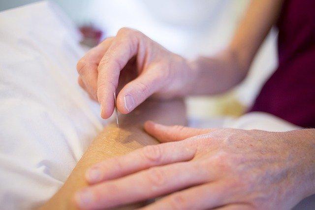 Acupuncture, Holistic Healing, Holistic, Medicine