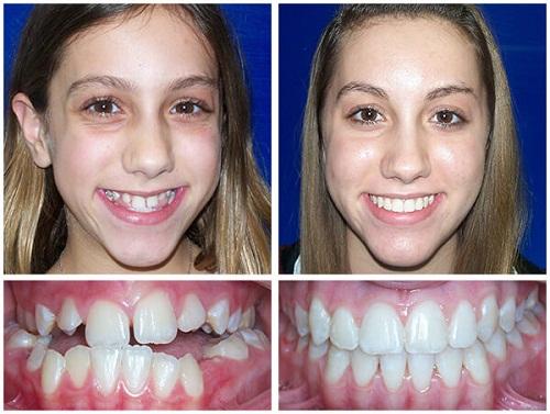 Niềng răng hàm trên bao nhiêu tiềnphụ thuộc vào yếu tố nào? 1
