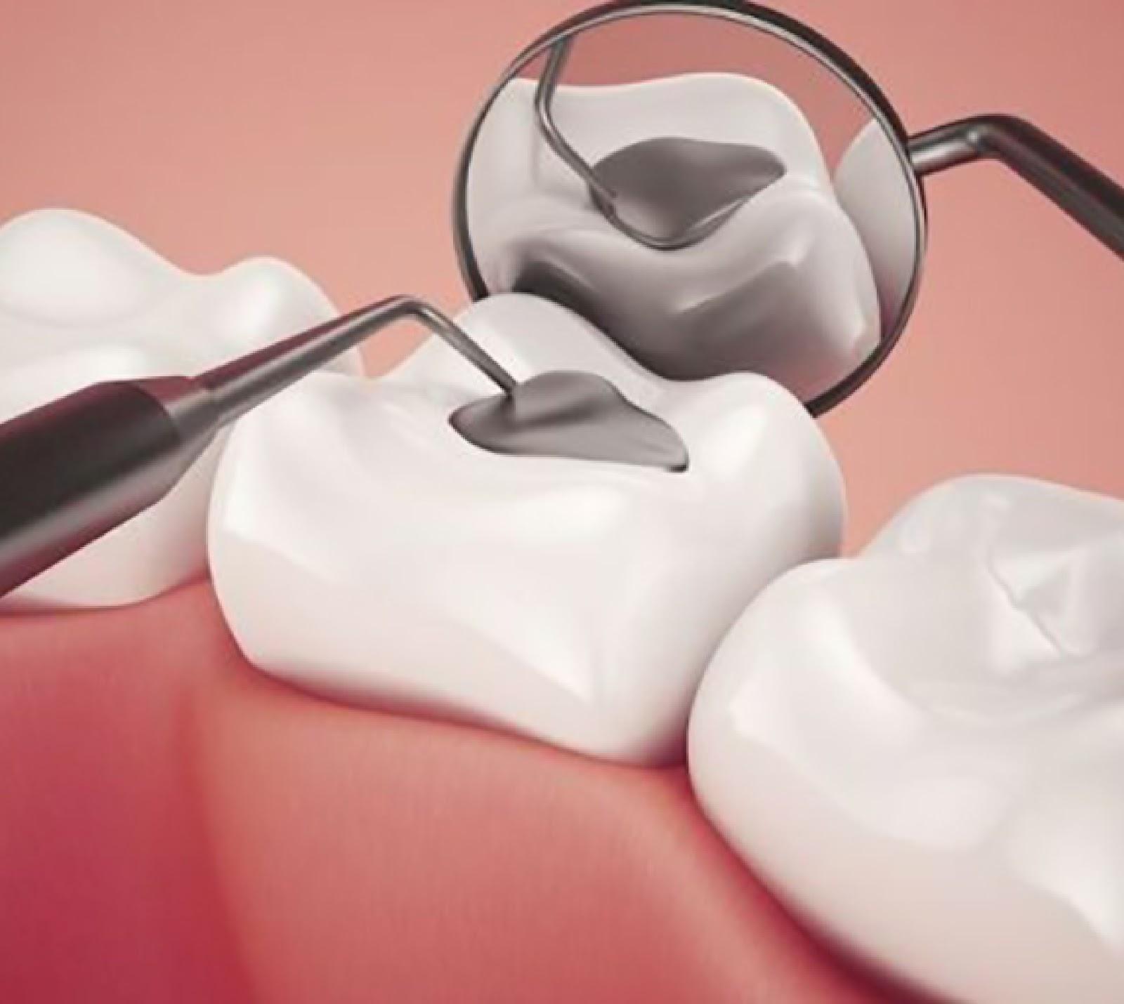 Hàn răng cửa bị mẻ bằng vật liệu gì tốt nhất năm 2018?