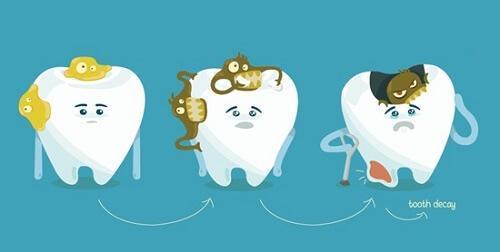 Tẩy trắng răng bị ê buốt có nguy hiểm không?