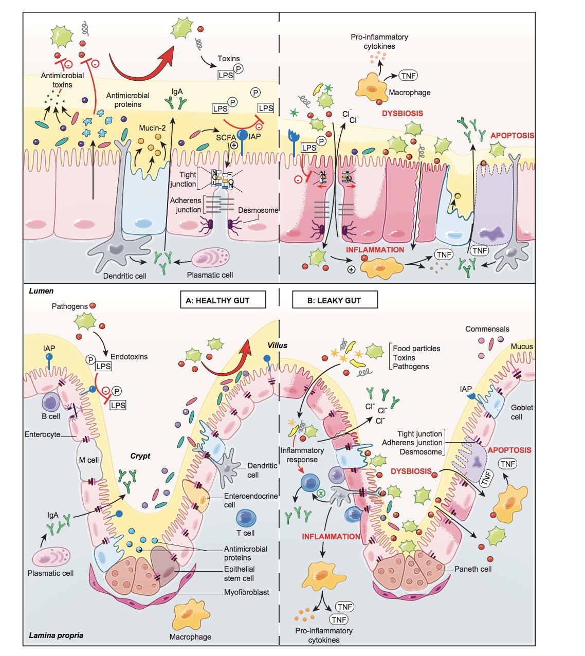 probiotics for SIBO probiotics for small intestinal bacterial overgrowth SIBO treatment with probiotics lactobacilli and SIBO bifidobacterium and SIBO spore based probiotics and SIBO