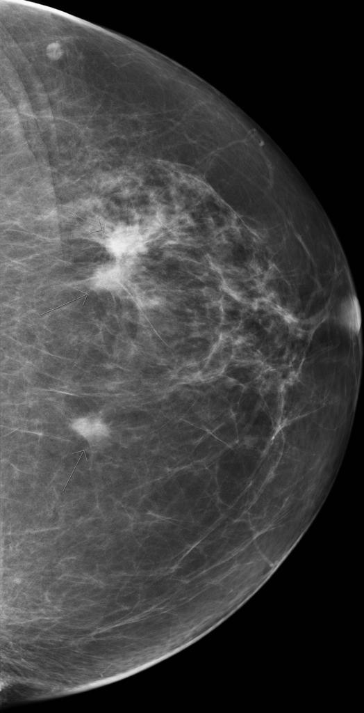 Image result for multifocal mammography