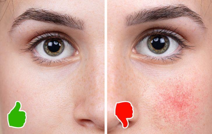 Từ bỏ cà phê có thể khiến làn da của bạn xuống cấp không ngờ - Ảnh 4.