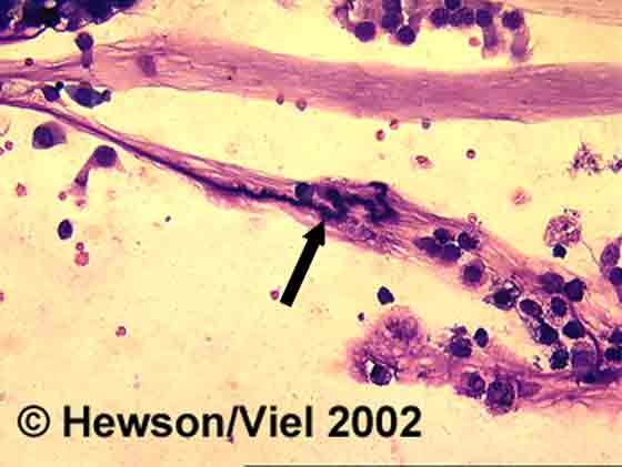 A Curschmann spiral (arrow) in mucus from BAL fluid. Wright-Giemsa stain. Magnification: 400X.