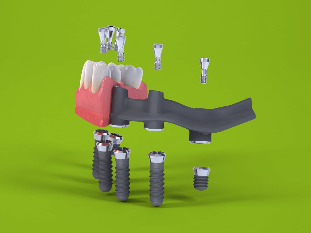 Имплантация челюсти Pro Arch