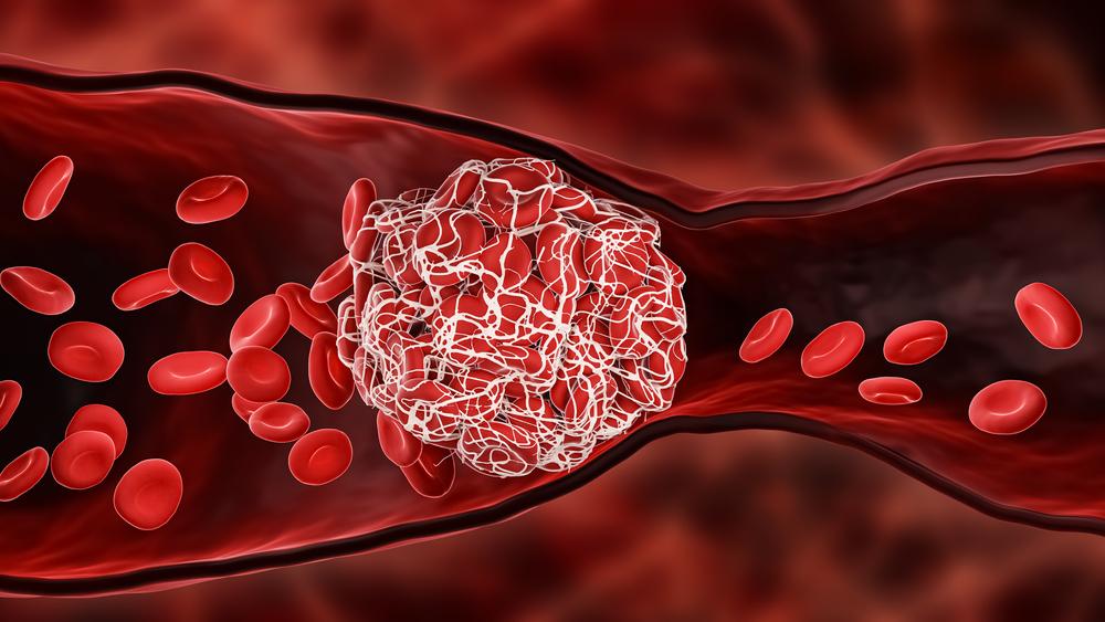 Os coágulos podem atingir vários órgãos, como o cérebro, o pulmão e o coração. (Fonte: MattLphotography/Shutterstock/Reprodução)