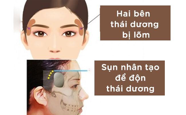 Trẻ hóa gương mặt với phương pháp độn thái dương - Ảnh 2