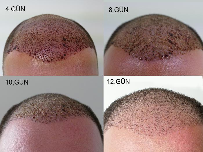 saç ekimi sonrası 4. gün ve 8. gün