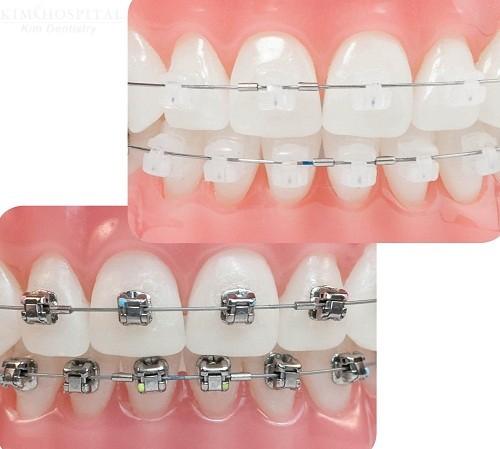 Chi phí niềng răng mắc cài sứ khoảng bao nhiêu ưu đãi nhất?