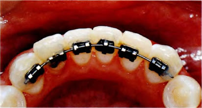 Реставрация зубов скачать реферат