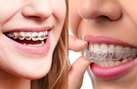 Youn teens with invisalign braces and traditional metal braces