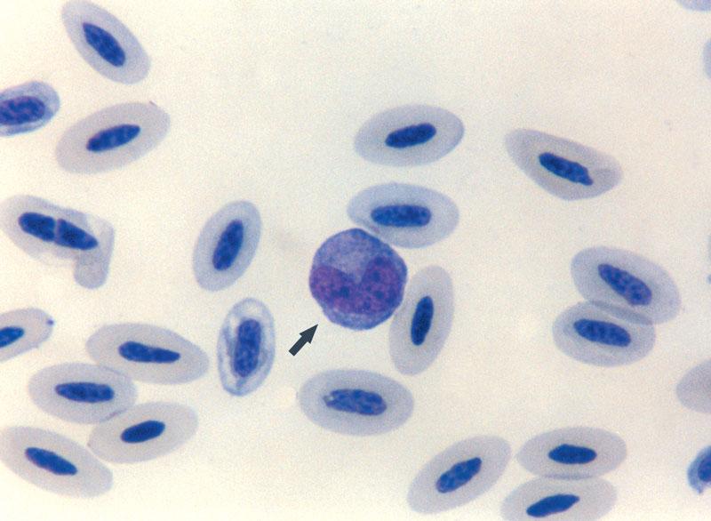 A reactive monocyte (arrow)