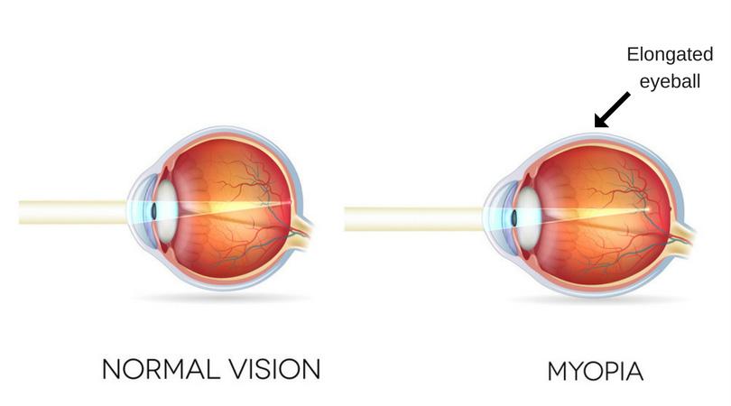 myopia effect