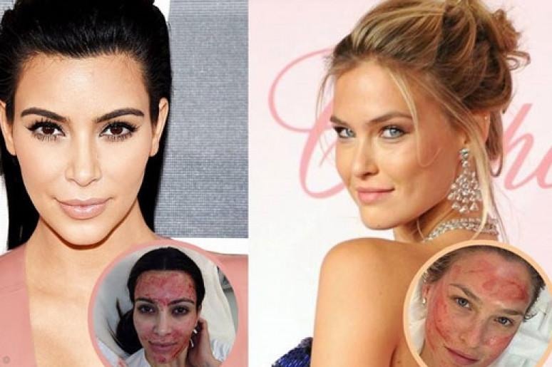 Kim Kardashian và Bar Refaeli đều tin tưởng và điều trị sẹo mụn bằng phương pháp lăn kim