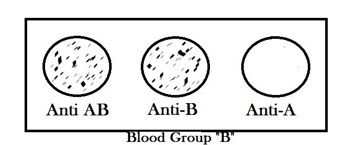 Blood group B