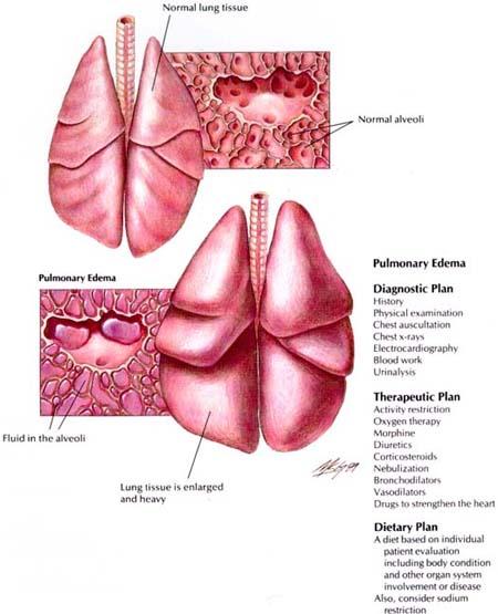 Human Biology Online Lab / Lab Five Pulmonary edema