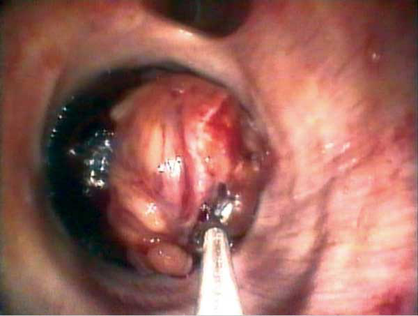 Rarely, disease of the airway mucosa may be grossly visible