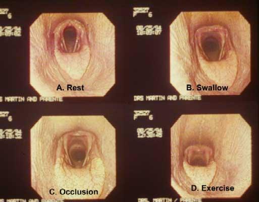 La apariencia durante el ejercicio de la laringe y la faringe (D) es muy similar a la apariencia de la laringe y faringe inmediatamente después de la deglución (B). La visión en reposo demuestra una abducción mínima de los aritenoides (A), y la apariencia durante la oclusión nasal demuestra el colapso faríngeo (C).