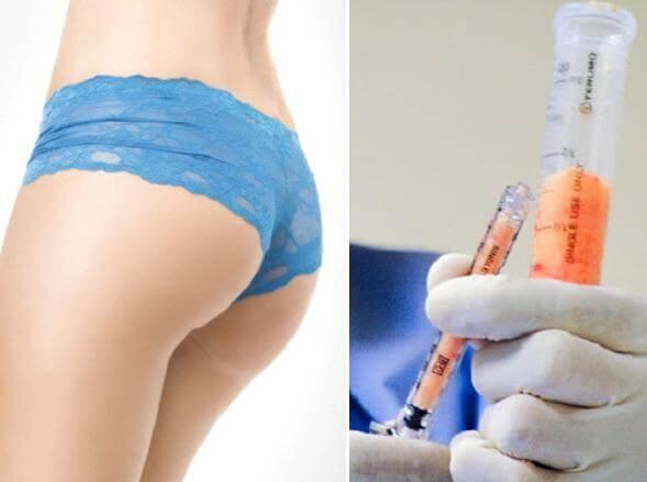 Nâng mông bằng mỡ tự thân - Vòng 3 căng tròn, mềm mại  - Ảnh 2
